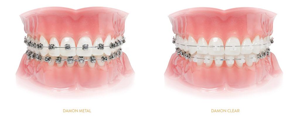 aparat na zęby kraków