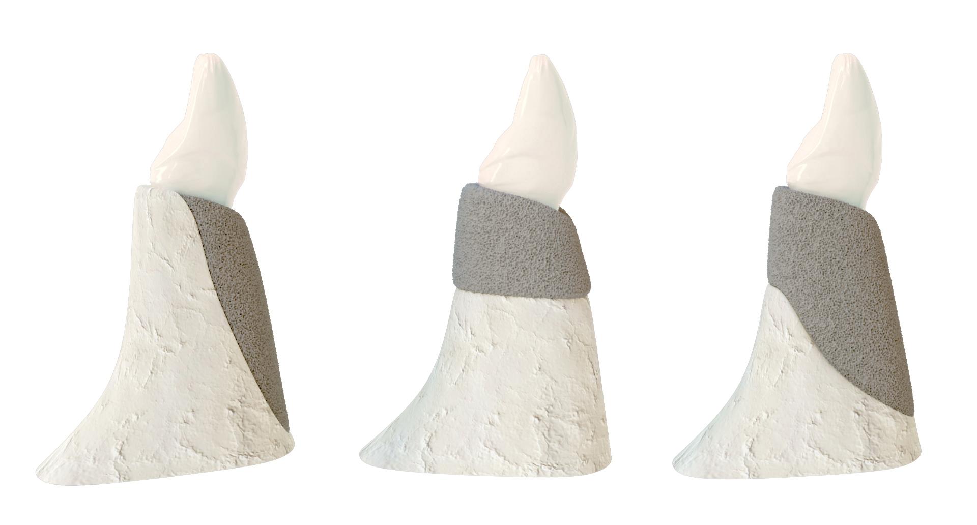 implanty zębowe kraków