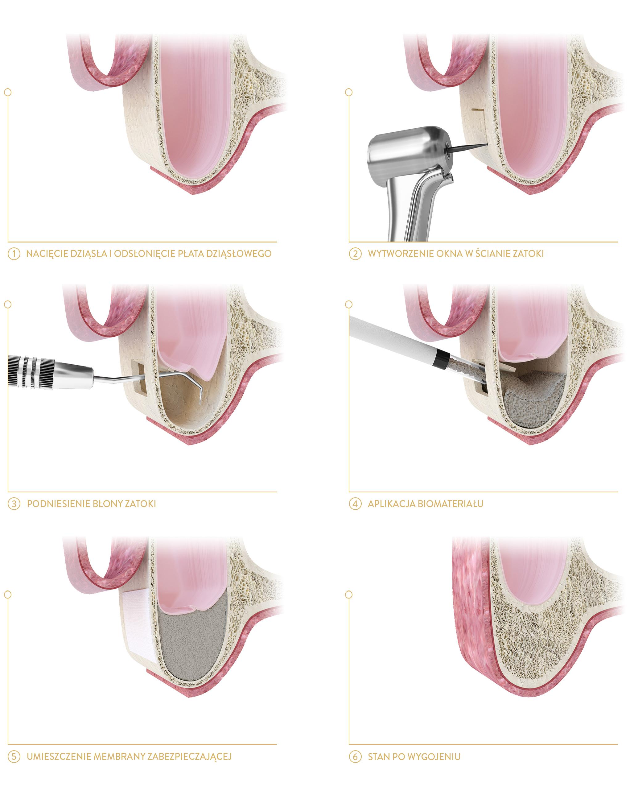 Podniesienie dna zatoki - implanty cichoń kraków
