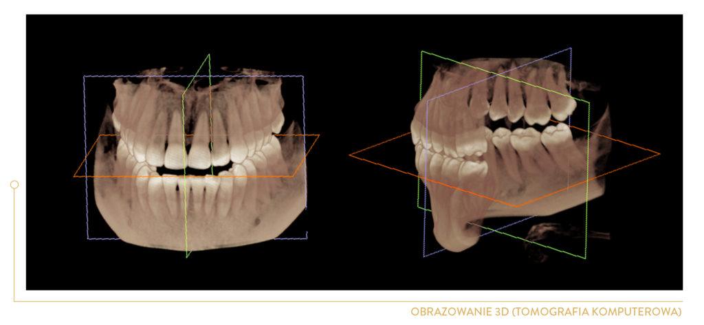 panorama zębów kraków - rtg zębów kraków - rentgen zębów kraków