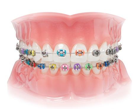 ortodonta cichoń kraków