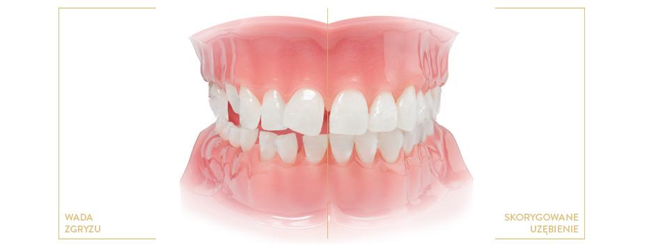 ortodonta kraków