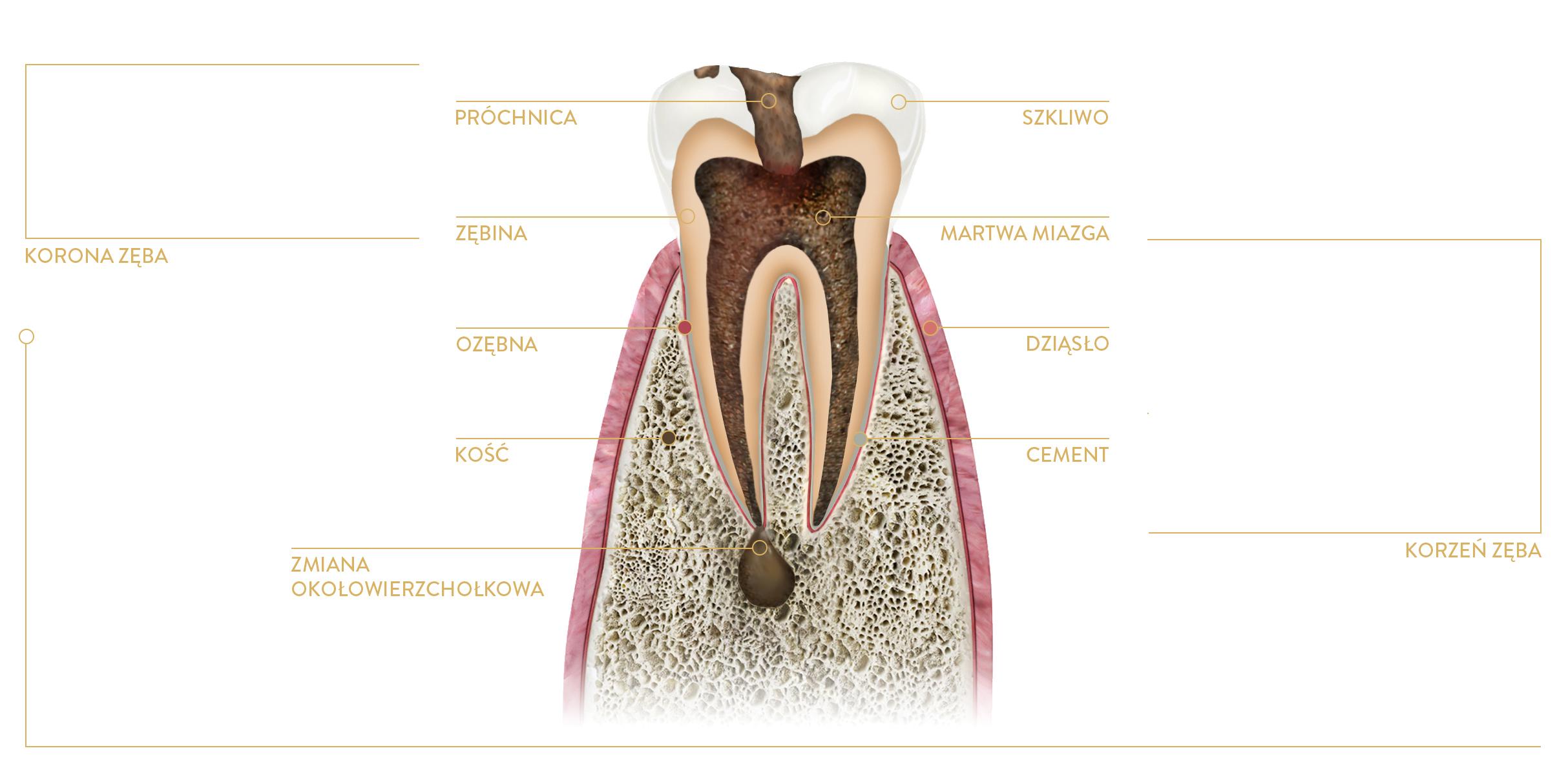 leczenie kanałowe zęba kraków