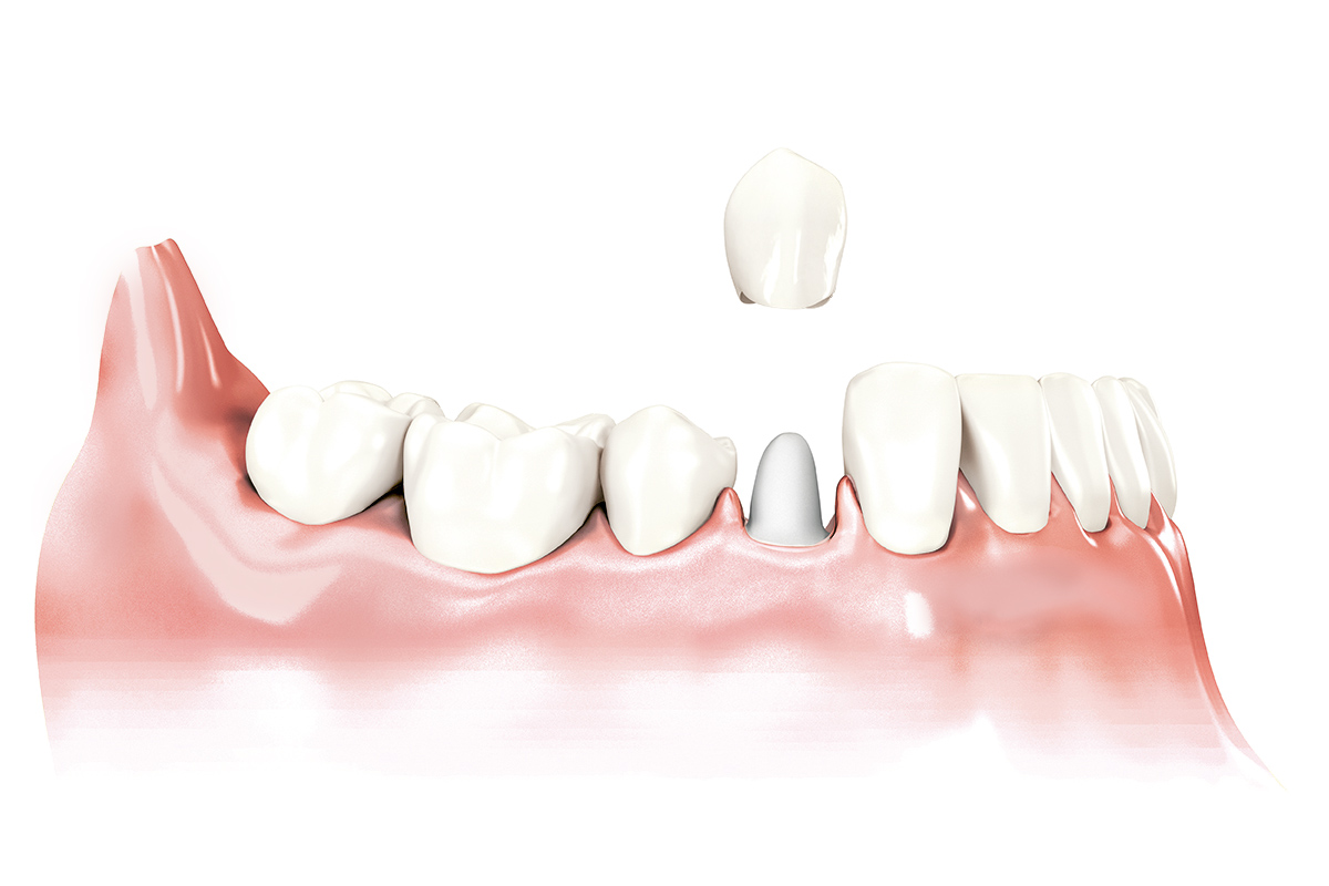 protetyka stomatologiczna cichoń kraków