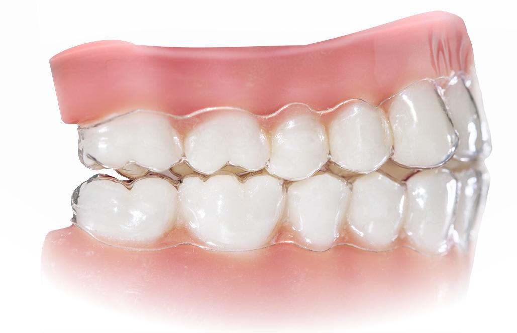 ortodonta - aparat ortodontyczny kraków