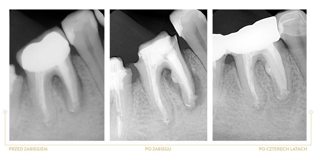 leczenie kanałowe zęba