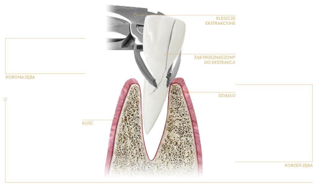 chirurg dentystyczny kraków - usuwanie zębów kraków