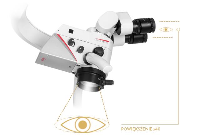 leczenie kanałowe mikroskop kraków
