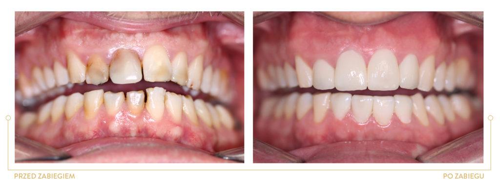periodontologia >WYDŁUŻENIE KORON ZĘBÓW