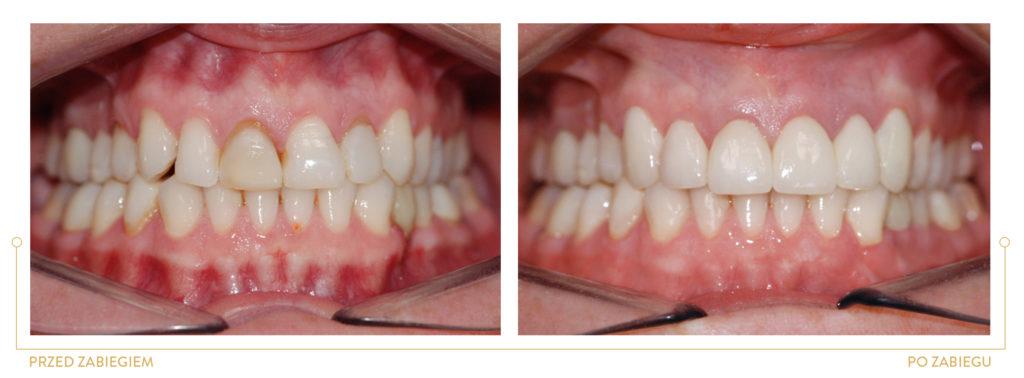 periodontologia WYRÓWNANIE GIRLANDY DZIĄSŁOWEJ