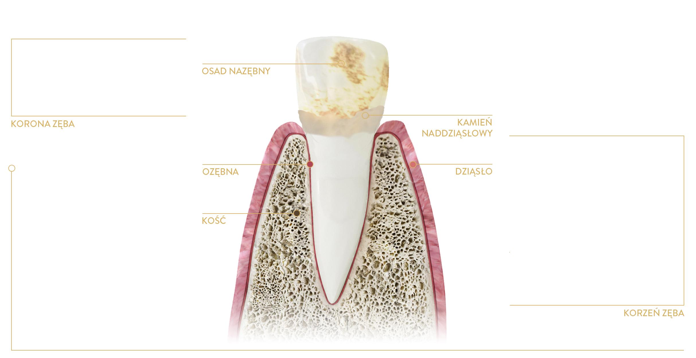 piaskowanie zębów kraków