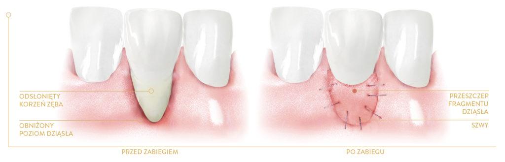 Leczenie periodontologiczne chirurgiczne - regeneracyjne