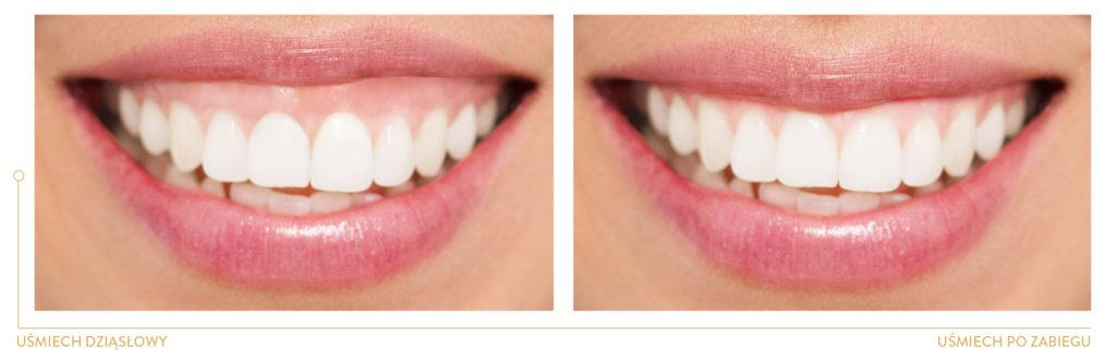 periodontologia UŚMIECH DZIĄSŁOWY PRZED I PO KOREKCIE