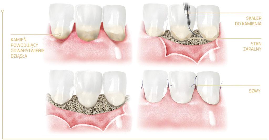 Leczenie periodontologiczne chirurgiczne - resekcyjne zabieg płatowy