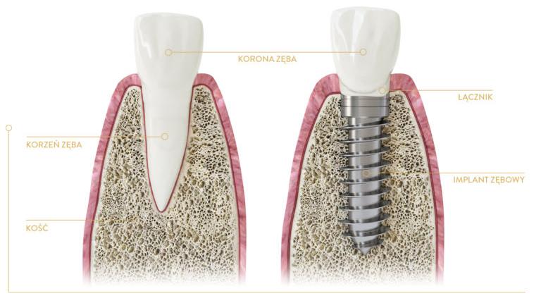 Porównanie zęba naturalnego i sztucznego implantu