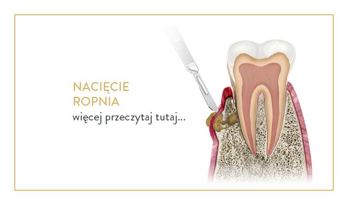 nacięcie ropnia i usuwanie zębów cichoń kraków