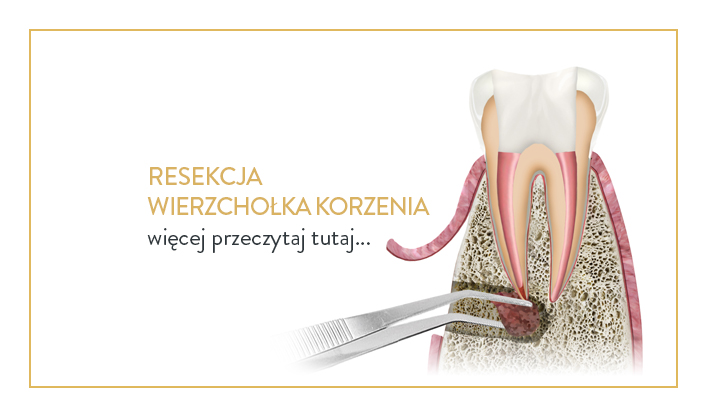 resekcja wierzchołka korzenia - chirurg dentystyczny