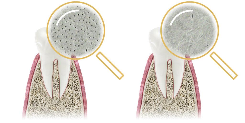 powierzchnia zęba przed zabiegiem vs powierzchnia zęba po zabiegu prevdent kraków